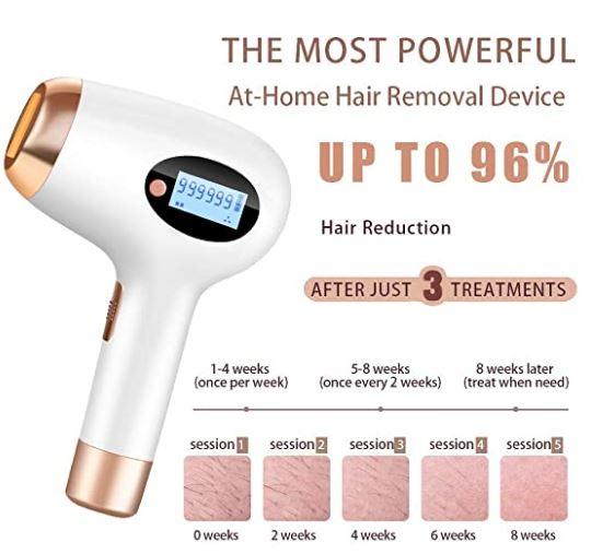 Feeke Home laser hair removal