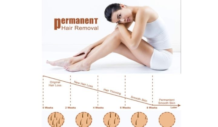 Beamia At-Home IPL permanent Hair Removal